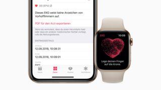 Den unike Apple Watch-funksjonen har kommet til Norge