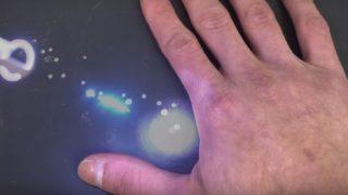 Laser hånd