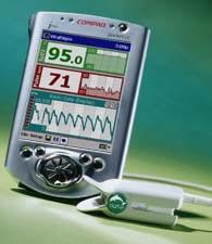 Pulsmåler på PDA